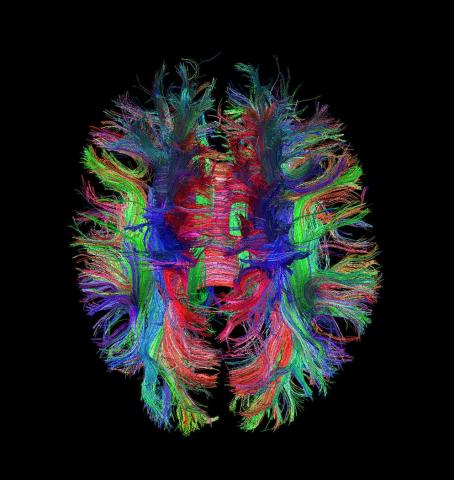 Brain Links
